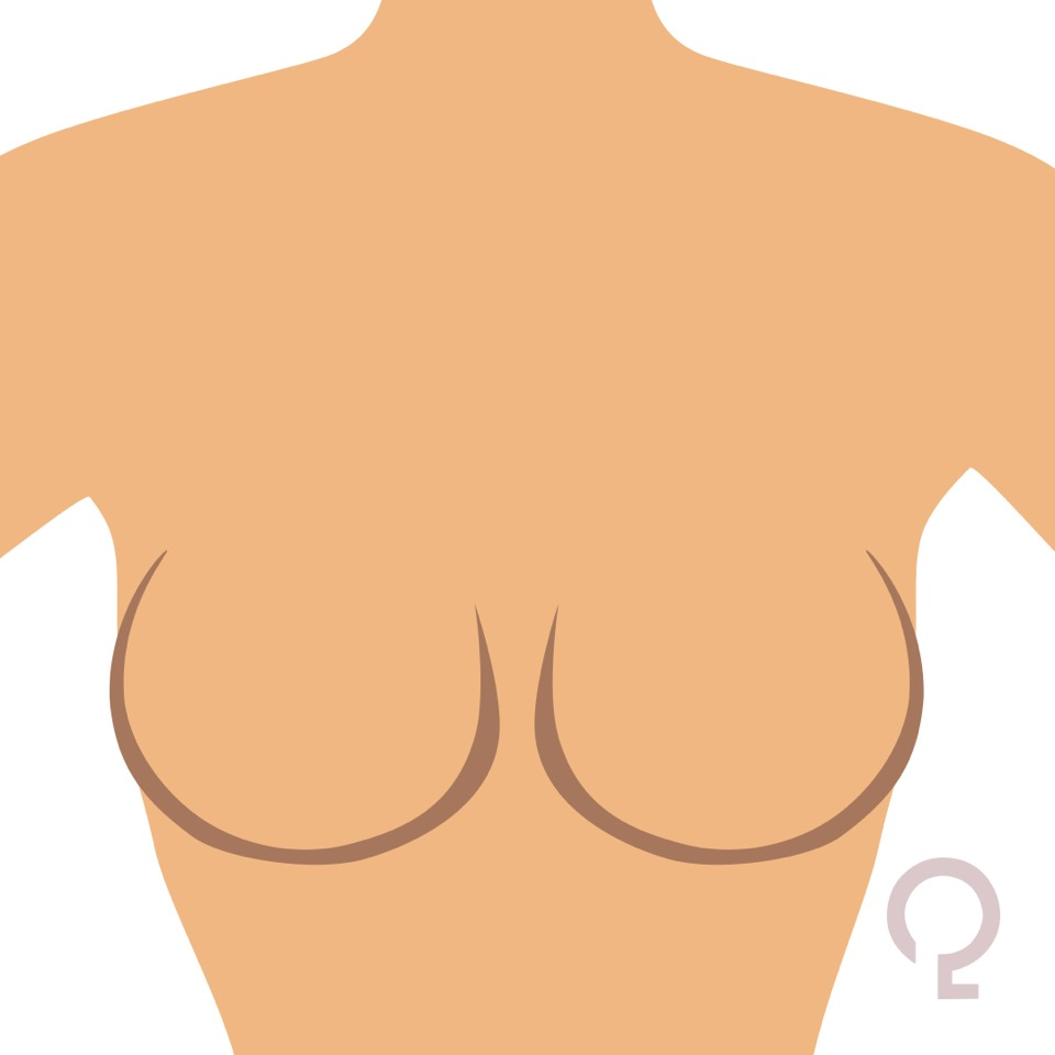qlinn-round-breast-image-4.jpeg